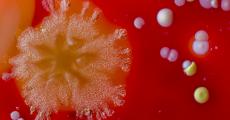 Bacteria cultures